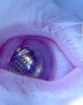 contact lens screen